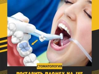 Поставить пломбу на зуб за 2500 рублей в Москве