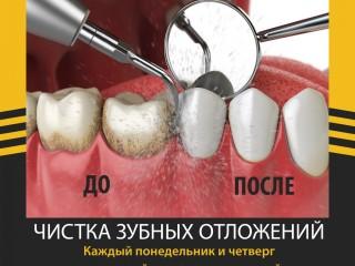 Чистка зубных отложений за 2800 рублей